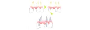 implant-3-2-1