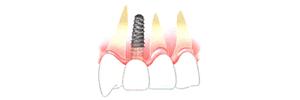 implant-3-2-2