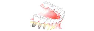 implant-3-4-2