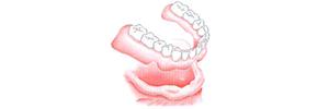 implant-3-6-1