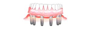 implant-3-6-2
