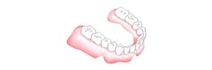 implant-3-8-1