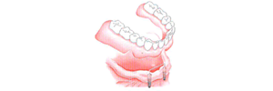 implant-3-8-2